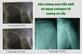 Gãy xương mau liền nhờ sử dụng collagen từ xương cá sấu