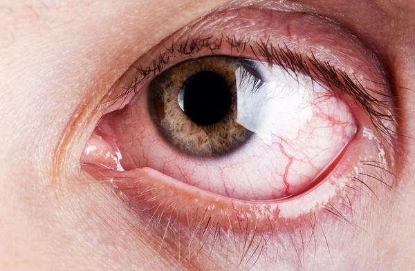 Tác dụng phụ của aspirin gây viêm kết mạc mắt